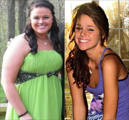 Girls Before and After Weight Loss