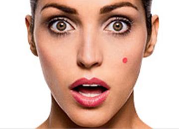acné coté gauche visage 2016